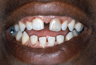 Deryck's Smile Before Porcelain Veneers