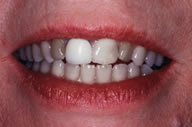 Discolored Teeth Prior to Receiving Dental Crowns