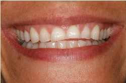 Amanda's teeth before bulimia treatment