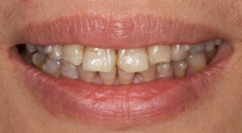 Porcelain veneers can fix your tetracycline stains
