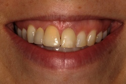 New Jersey dental implants before picture from Dr. Allyson Hurley.