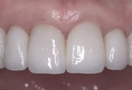 Teeth only after photo of patient (J) for teeth too big smile makeovers from New Jersey cosmetic dentist Dr. Allyson Hurley.