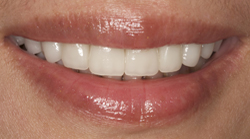 Teeth and lips after photo of patient (Y) for tetracycline stains makeovers in the smile gallery of New Jersey cosmetic dentist Dr. Allyson Hurley.