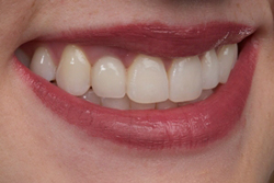 Teeth and lips after photo of patient (L) for missing tooth smile makeovers from New Jersey cosmetic dentist Dr. Allyson Hurley.