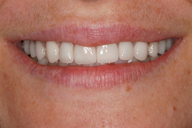Teeth and lips after photo of patient (Lz) for dental crowns from New Jersey cosmetic dentist Dr. Allyson Hurley.