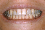Teeth and lips before photo of patient (Lz) for dental crowns from New Jersey cosmetic dentist Dr. Allyson Hurley.