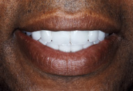Deryck's Smile After Porcelain Veneers