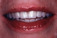 Teeth are Whiter and Brighter with Dental Crowns
