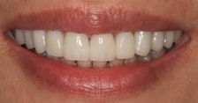 A smile Dr. Hurley renewed with porcelain veneers.