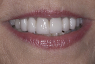 After lips and teeth photo of patient (J) for teeth too big smile makeovers from New Jersey cosmetic dentist Dr. Allyson Hurley.