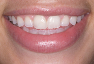 After dental bonding photo of patient (R) from the smile gallery of Bedminster, NJ cosmetic dentist Dr. Allyson Hurley.