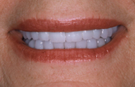 After photo of patient (L) for missing teeth in the smile gallery of New Jersey cosmetic dentist Dr. Allyson Hurley.