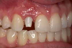 Before photo of patient (L) for missing tooth smile makeovers from New Jersey cosmetic dentist Dr. Allyson Hurley.