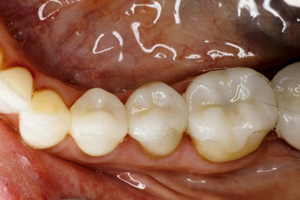 Onlay after photo from New Jersey cosmetic dentist Dr. Allyson Hurley.