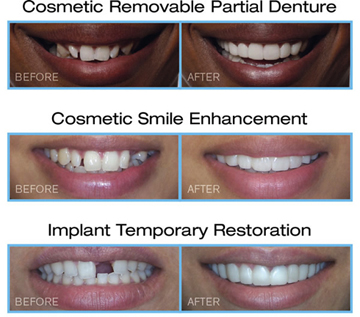 Three sets of before-and-after photos of a Snap-On Smile, for information on this appliance from Chatham, NJ accredited cosmetic dentist Dr. Allyson Hurley.