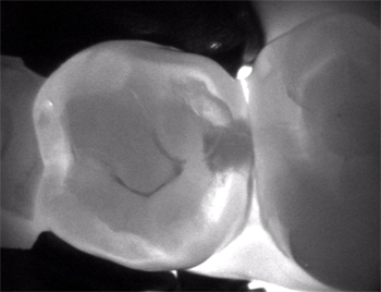 Digital photo of two molar teeth that are viewed thru Carivu digital cavity detection, available in Chatham NJ from Dr. Allyson Hurley. The backgroud is black and light is shining beneath two teeth. The right-hand side of the left molar has a dark spot on it.