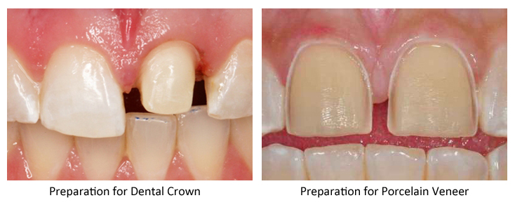 Side-by-side photos of upper front teeth for information on tooth preparation for a dental crown vs. a porcelain veneer; from the office of NJ top dentist Dr. Allyson Hurley.