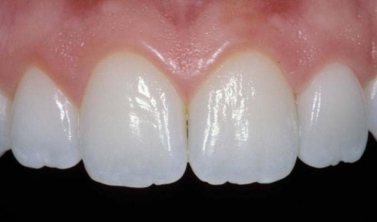 Photo of four upper front teeth with a crown on the incisor to the right; for information on why porcelain veneers might be too shiny.