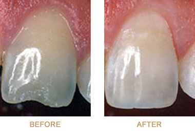 Before-and-after photo of a chipped front tooth, repaired with dental bonding, which is available in Chatham NJ from Dr. Allyson Hurley.