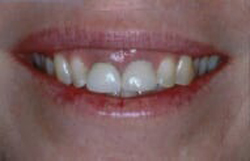 Before photo of short adult teeth with a gummy smile - from NJ top dentist Allyson Hurley DDS in Chatham NJ