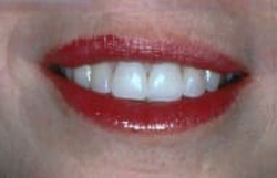 After photo of even teeth and contoured gumlines that were corrected for an adult with short teeth - from NJ top dentist Allyson Hurley DDS in Chatham NJ.
